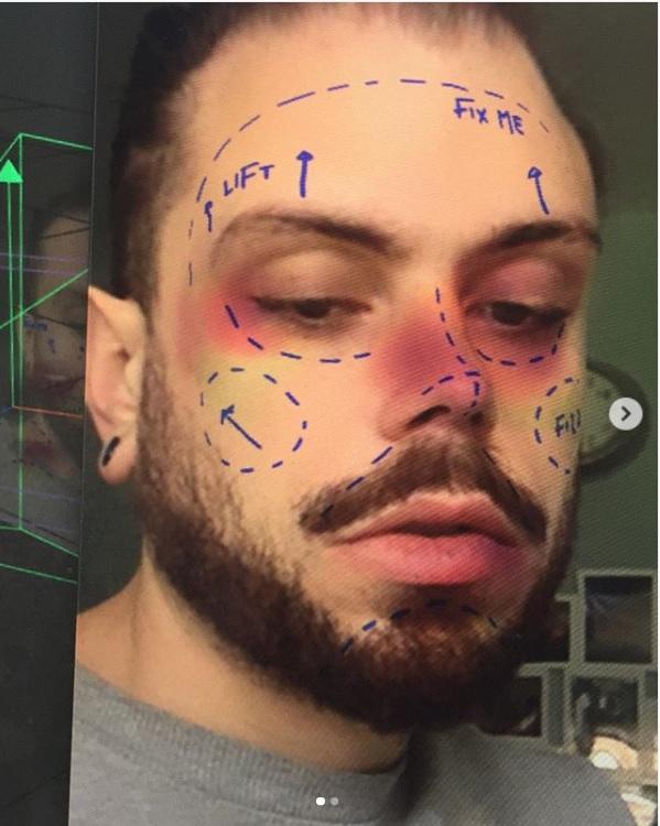 Instagram quitará los filtros que emulan los efectos de una cirugía  estética - Infobae