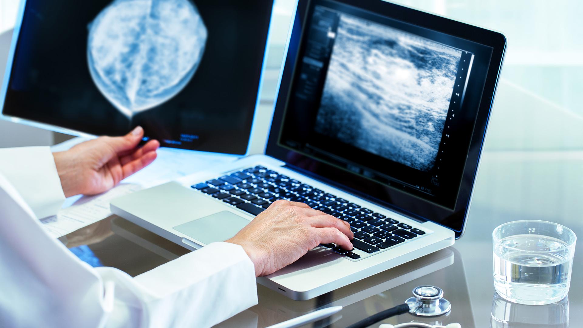 precio de mamografia en mexico