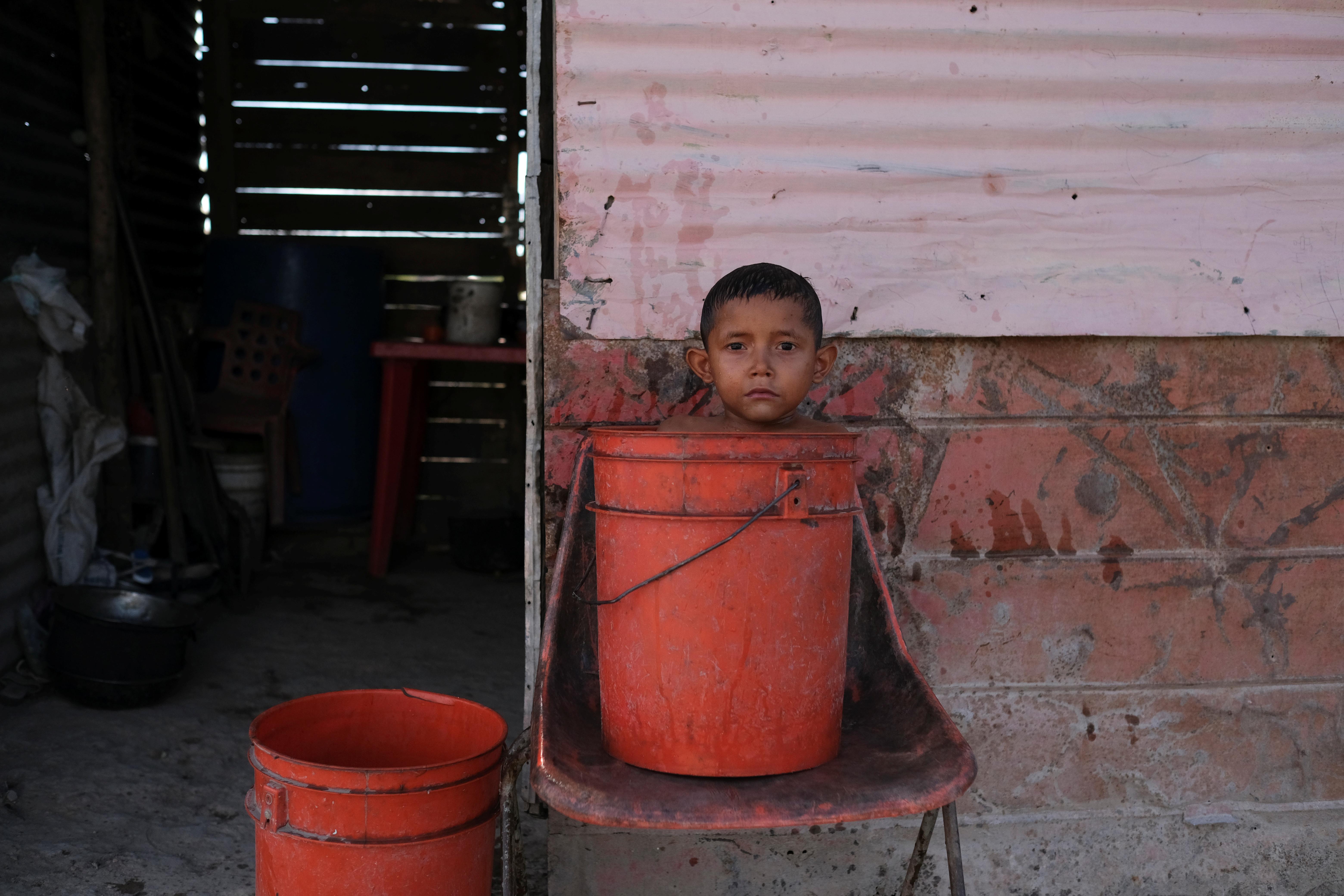 José María, de 6 años, con bajo peso para su edad y diagnosticado con desnutrición según su madre Rosa Rojas, se baña frente a su casa en Barquisimeto (REUTERS/Carlos García Rawlins)