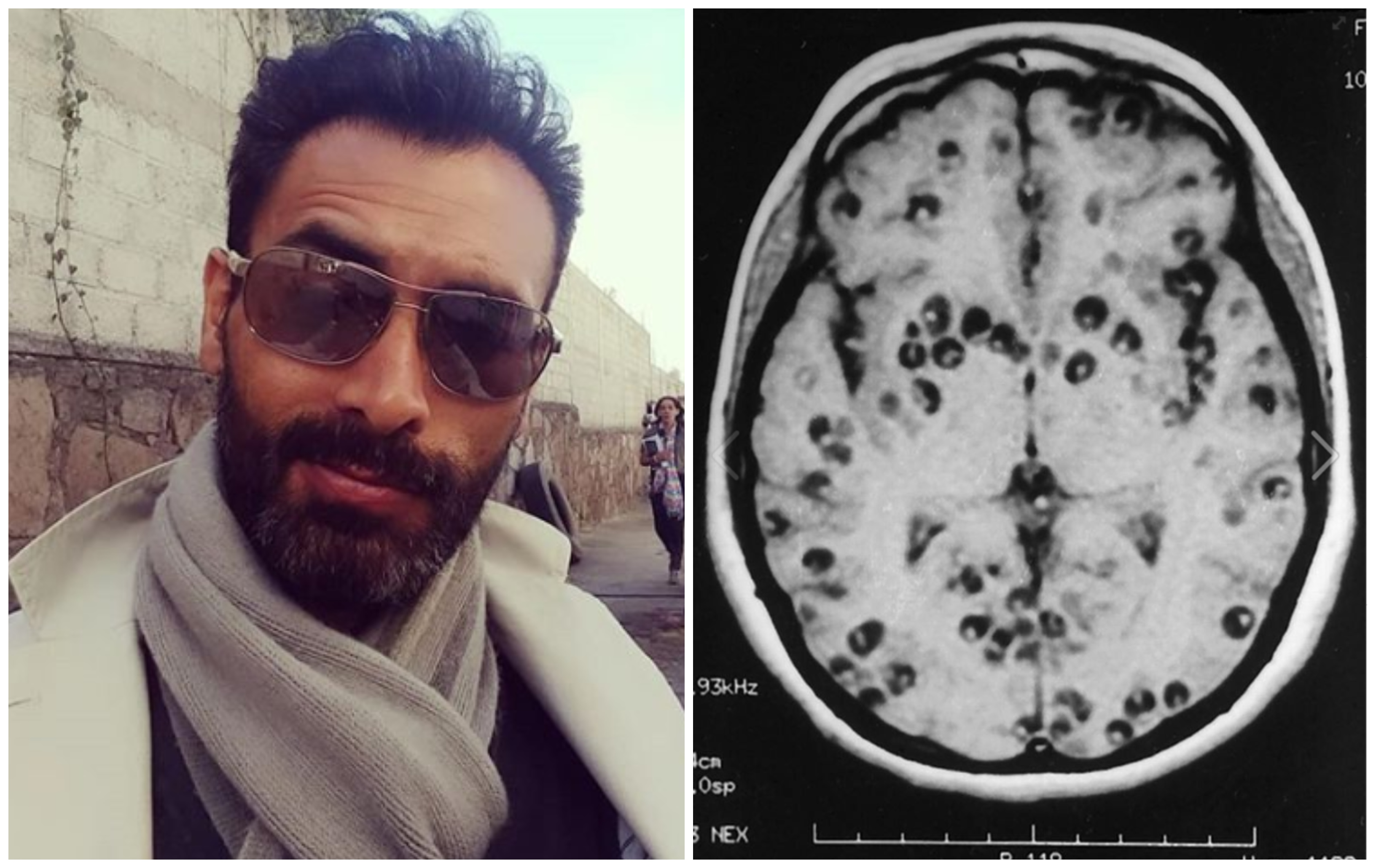 Actor Porno Con Enfermedad qué es la cisticercosis, la enfermedad que habría matado al