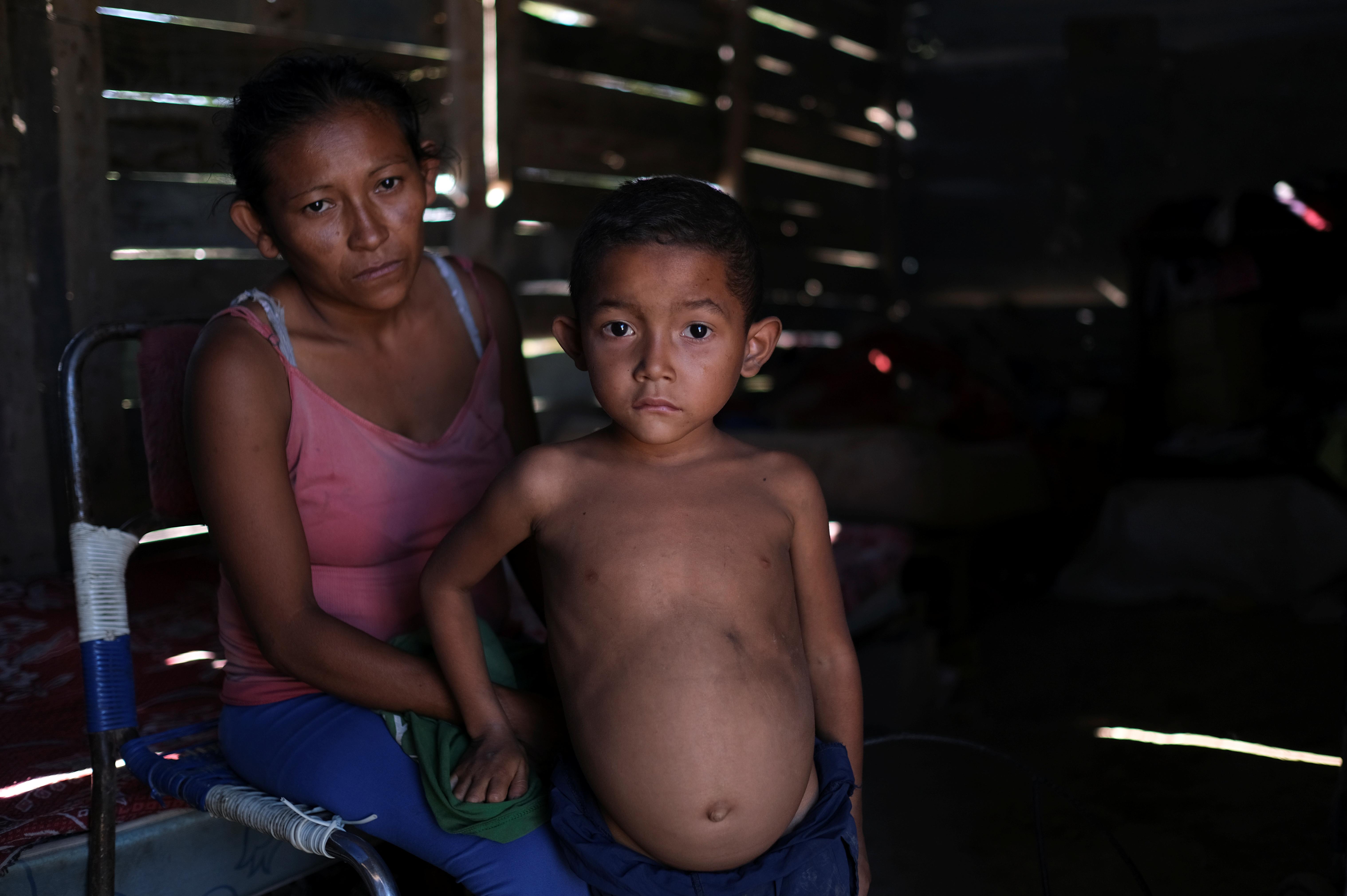 Rosa Rojas y su hijo José María, de 6 años, quien según ella tiene bajo peso para su edad y ha sido diagnosticado con desnutrición, posan para una foto en su casa en Barquisimeto (REUTERS/Carlos García Rawlins)