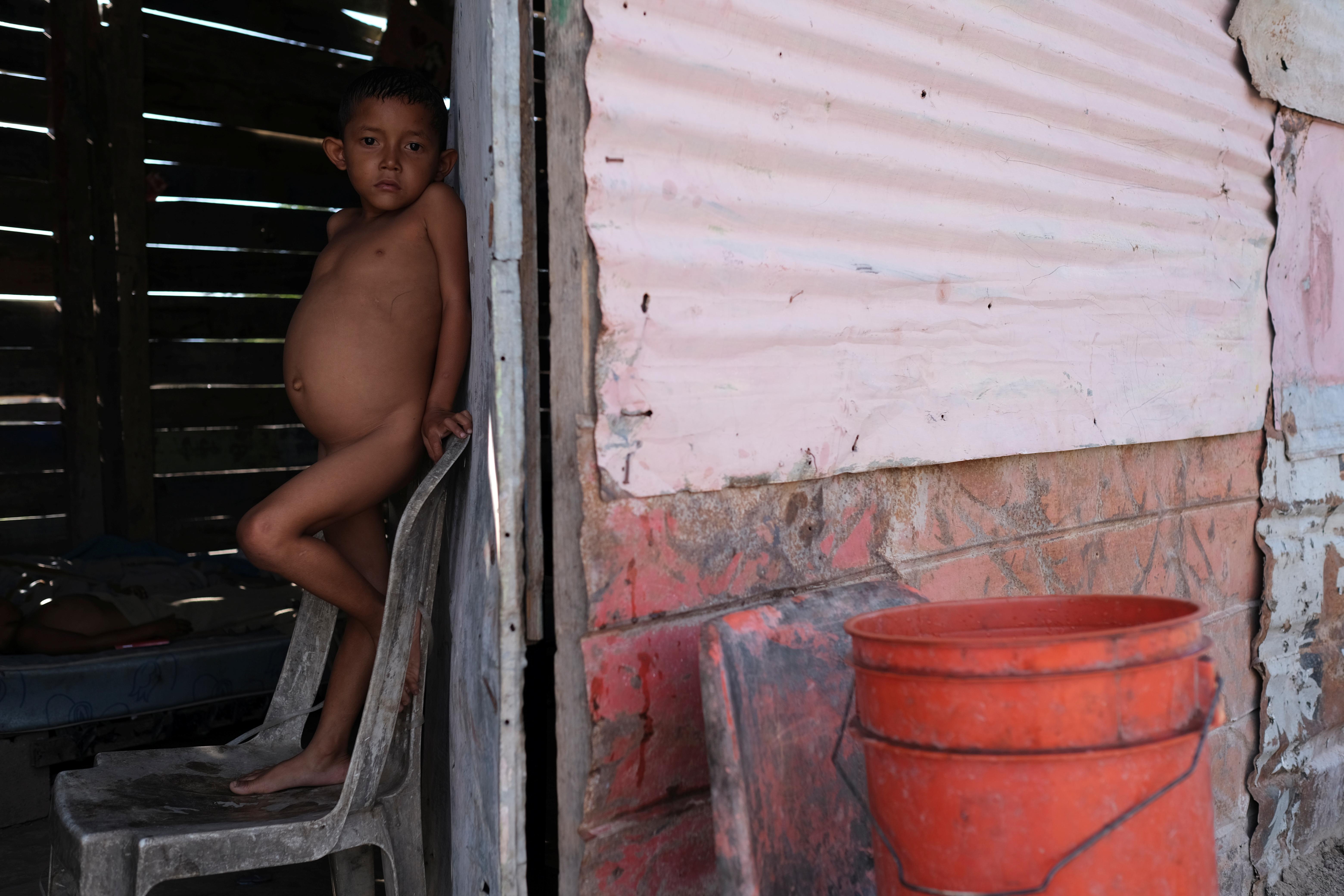 Jose María, de 6 años, mira a la cámara. Sufre de desnutrición (REUTERS/Carlos García Rawlins)