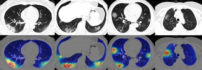 RADLogics desarrolló un algoritmo que identifica las anormalidades que causa el COVID-10 en los pulmones y pidió una autorización de emergencia a la FDA. (RADLogics)