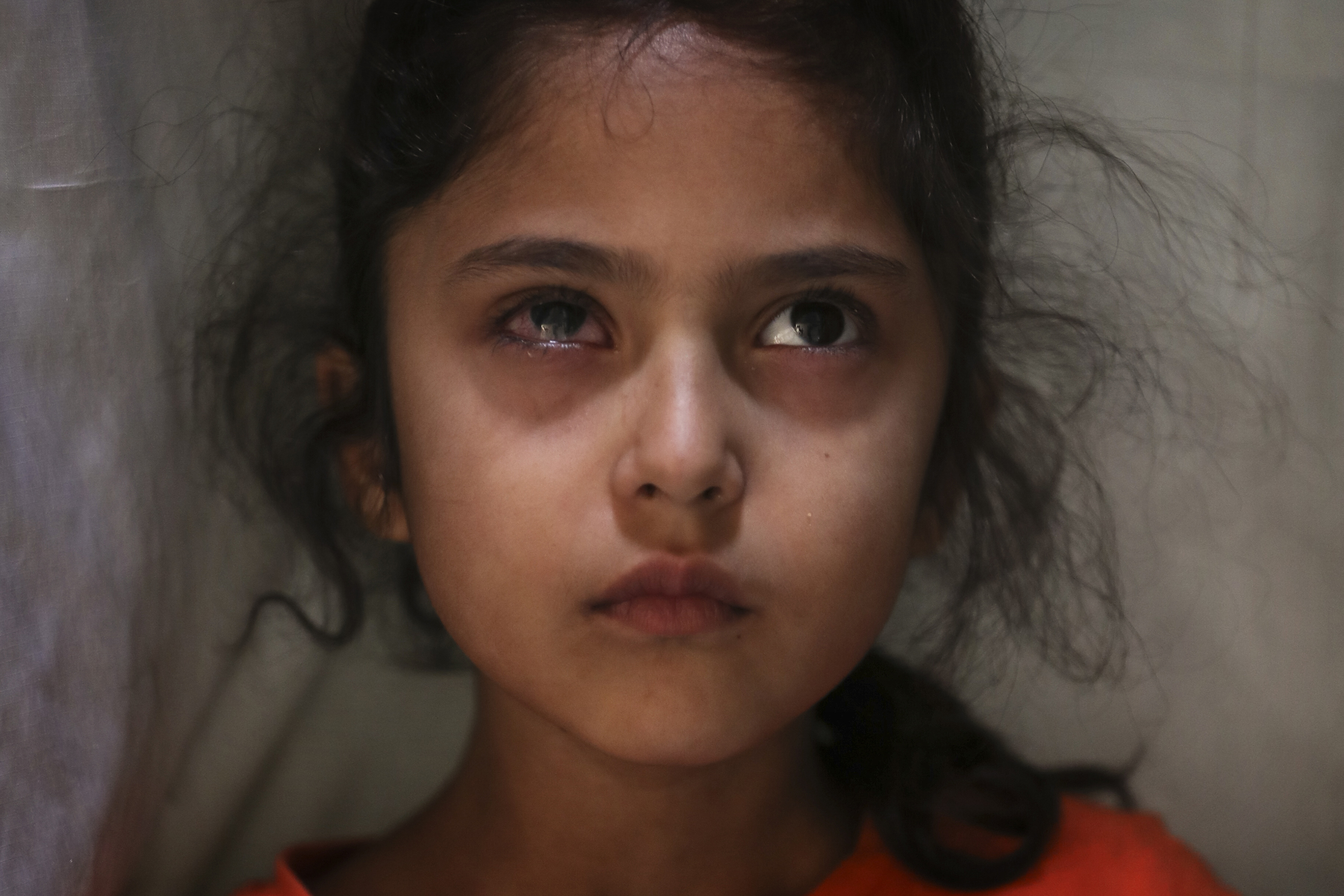 Muneefa Nazir, de seis años, una niña de Cachemira cuyo ojo derecho fue golpeado por una bola de mármol disparada supuestamente por soldados paramilitares indios el 12 de agosto, se encuentra frente a su casa en Srinagar, Cachemira. (Foto AP / Mukhtar Khan)